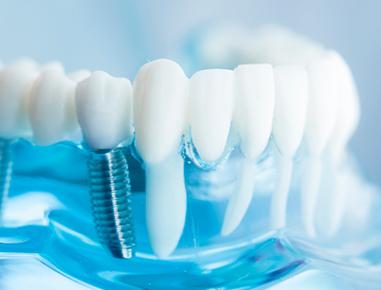 O objetivo anexar na mandíbula ou maxila um implante feito de materiais aloplásticos que servirão de suporte para as próteses unitárias...